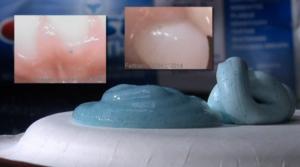 Toothpaste-polyethylene-beads